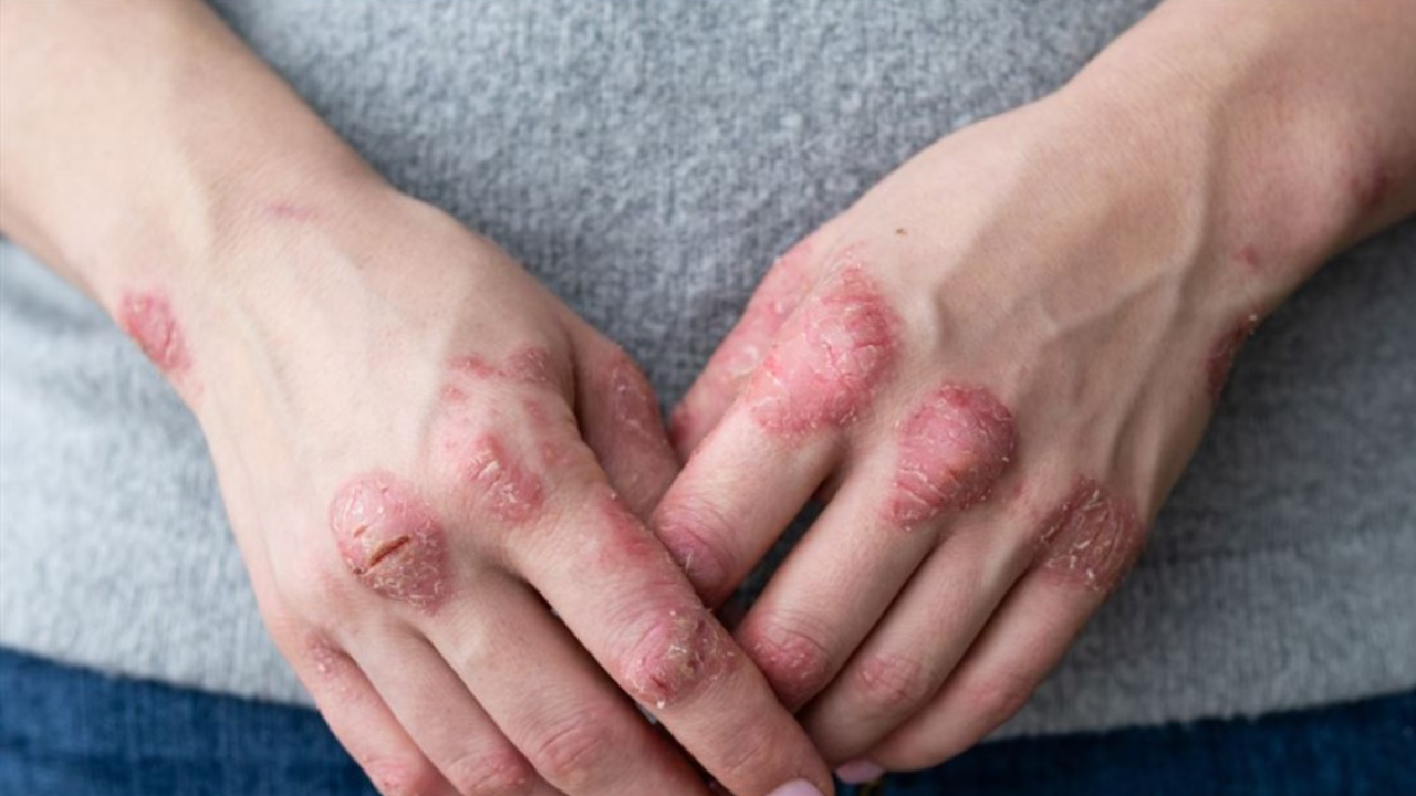 Identifying and Managing the Patient with Moderate Psoriasis